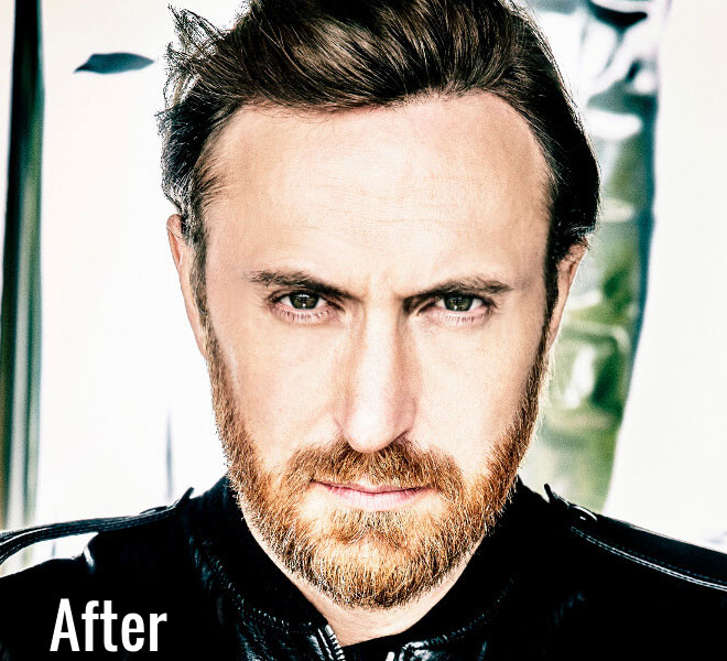 david guetta facelift