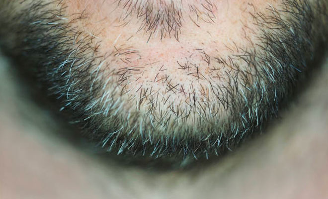 How Can Beard Implants Help To Eliminate Scratchy Hairs?