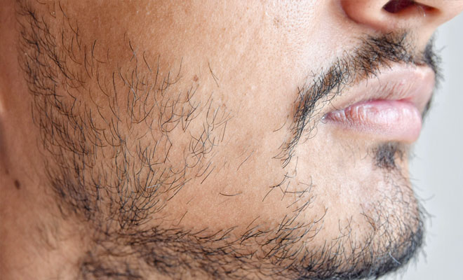 patchiness beard