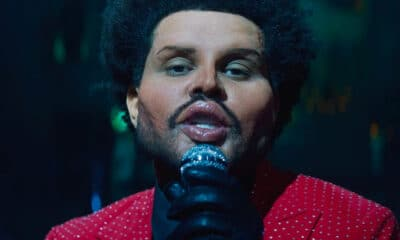 too much botox the weeknd